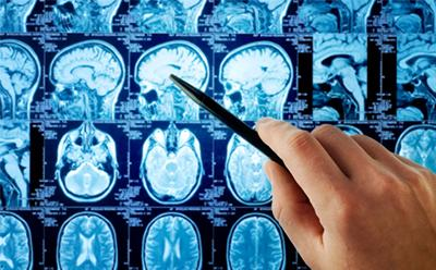 Novel biomarkers for Alzheimer's disease