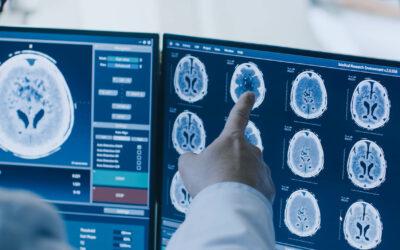 Diagnosis and Prognosis